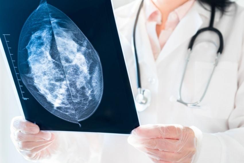 Ipuaçu zera fila de espera por exame de mamografia